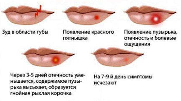 Как вылечить герпес на губах