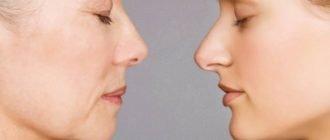 Типы старения кожи лица